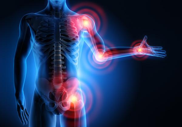 Arthrose Gelenkschmerzen